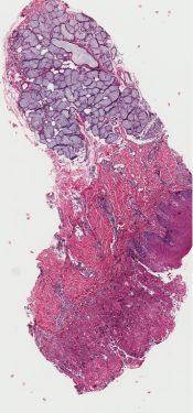 Herpes simplex (Oral cavity) [190/1]