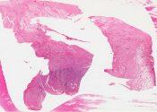 Fibroxanthoma (plasma cell granuloma; inflammatory pseudotumor) (Lung) [191/4]