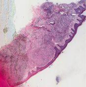 Zirconium granuloma (Skin) [194/3]