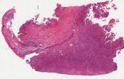 Osteosarcoma (Mandible and maxilla) [199/2]