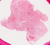Multifocal fibrosclerosis (Soft tissues) [201/3]
