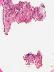 Wegener's granulomatosis (Skin) [202/11]