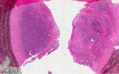 Malignant lymphoma (Nasal cavity - nasopharynx) [205/5]