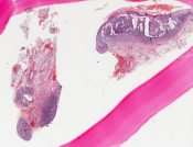 Pseudocarcinomatous hyperplasia (Oral cavity) [206/4]