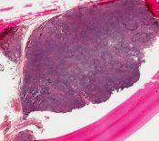 Mikulicz's disease (Salivary glands) [212/1]