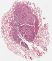 Small cell (oat cell) carcinoma (Lung) [213/1]