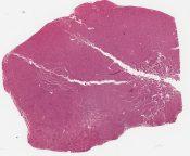 Carcinoid (Mediastinum-thymus) [214/10]