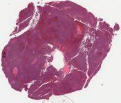 Thymoma (Mediastinum-thymus) [214/12]