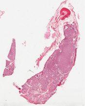 Adenoma (Parathyroid) [214/7]