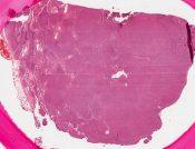Malignant lymphoma, nodular (Lymphnodes) [215/3]
