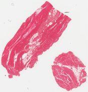 Nemaline myopathy (Skeletal muscle) [216/6]