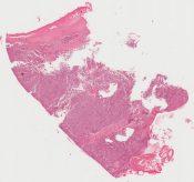 Rhabdomyosarcoma (Soft tissues) [216/7]