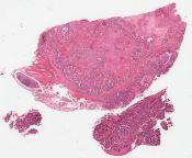 Metastatic tumor (Lung) [217/7]