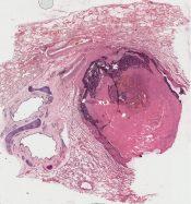 Asbestosis (Lung) [217/9]