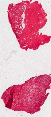 Kallman's syndrome (Testis) [219/1]