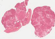 Klinefelter's syndrome (Testis) [219/3]