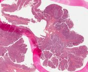 Adenomatous polyp (Large bowel) [220/5]
