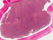 Plasma cell granuloma (Large bowel) [220/9]