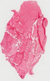 Malignant (immature) teratoma (Ovary) [222/2]