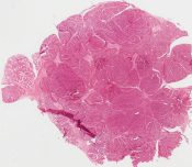 Acinic cell carcinoma (Salivary glands) [222/8]