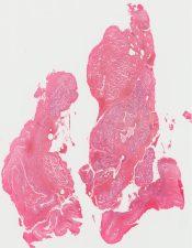Mucocele (Oral cavity) [225/3]