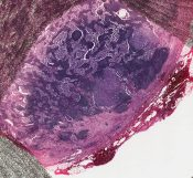 Mucinous carcinoma (Breast) [23/1]