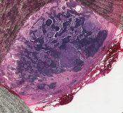 Mucinous carcinoma (Breast) [23/1]