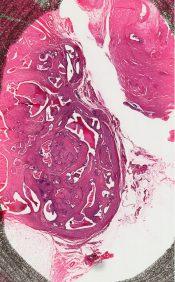 Fibroadenoma (Breast) [23/2]