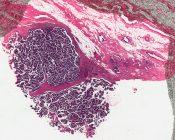 Papillary carcinoma (Breast) [23/3]