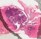 Intraductal papilloma(tosis) (Breast) [23/5]