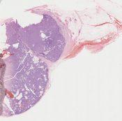 Papillary carcinoma (Breast) [234/12]