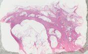 Invasive lobular carcinoma (Breast) [234/2]