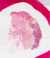 Bowen's disease (Skin) [243/3]