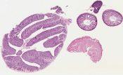 Bursitis (Mediastinum-thymus) [245/13]