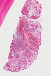 Rhinosporidium seeberi (Conjunctiva) (Eye) [246/9]