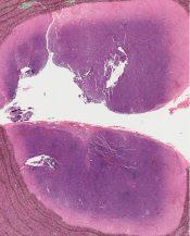 Malignant histiocytosis (Lymphnodes) [247/2]