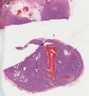 Angioimmunoblastic lymphadenopathy (Lymphnodes) [247/7]