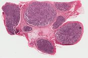 Metastatic tumor (Lymphnodes) [250/10]