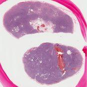 Angioimmunoblastic lymphadenopathy (Lymphnodes) [250/7]
