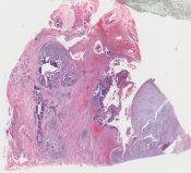 Metaplastic carcinoma (Breast) [251/4]