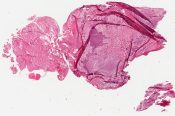 Metastatic tumor (Mandible and maxilla - oral cavity) [252/2]