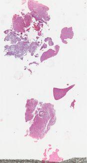 Astrocytoma (CNS) [254/4]