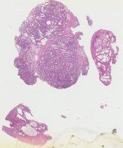 Nodular hyperplasia (Prostate) [257/3]