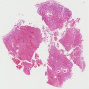 Paraganglioma (Bladder ) [257/7]