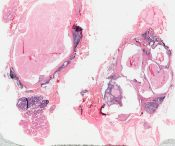 Mucoepidermoid carcinoma (Salivary glands) [258/4]