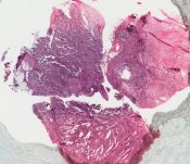 Carcinosarcoma (Breast) [26/10]