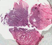 Carcinosarcoma (Breast) [26/10]