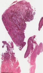 Ganglioneuroblastoma (Adrenal) [26/11]