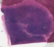Hyperplasia (Lymphnodes) [26/16]