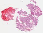 Adenoma (Pituitary) [261/1]